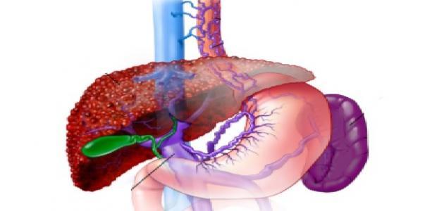 مرض التهاب الكبد الفيروسي وأعراضه