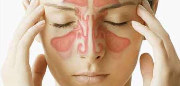 أعراض حساسية الجيوب الأنفية