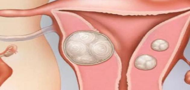 علاج تليف الرحم