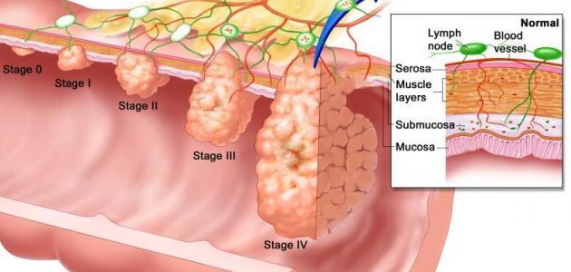 سرطان المستقيم وعلاجه