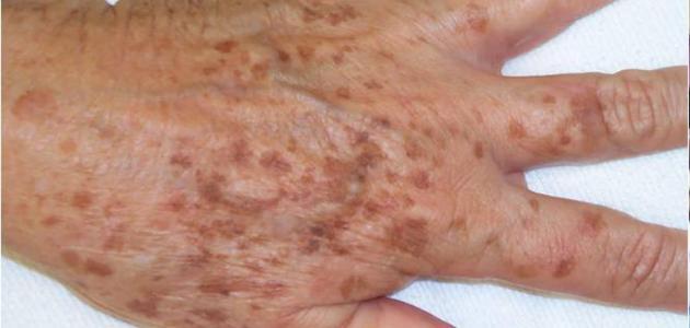 ظهور بقع بنية على الجلد