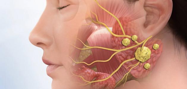 سرطان الغدد اللعابية