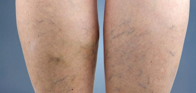 كيفية معالجة دوالي الساقين