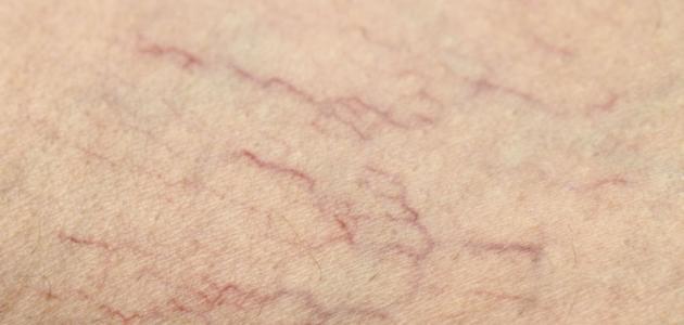 طرق الوقاية من مرض دوالي الساقين
