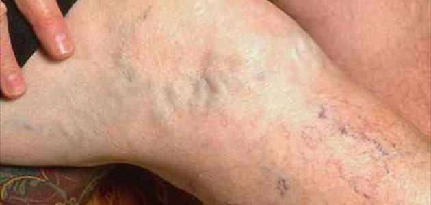 علاج الشبكة الوريدية العنكبوتية