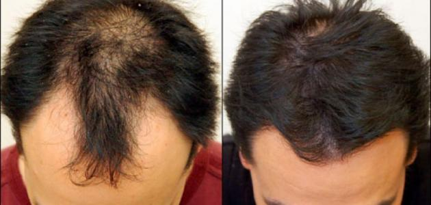 علاج تساقط الشعر والصلع
