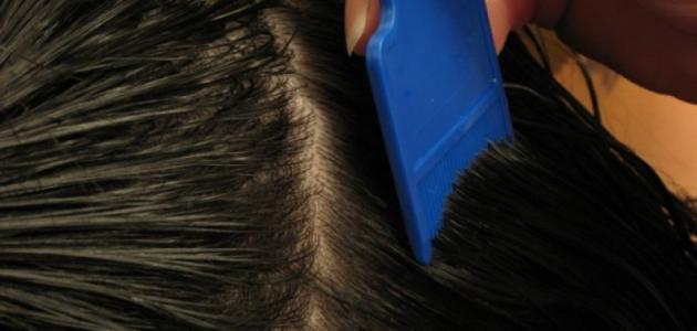 قمل الشعر وعلاجه