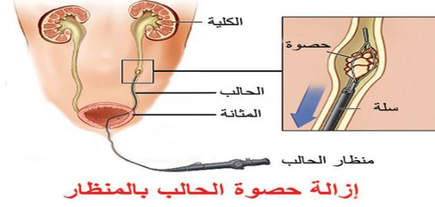 سير دينجي مخصص علاج حصوة المثانة عند النساء Dsvdedommel Com