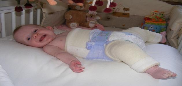 خلع الولادة عند الاطفال