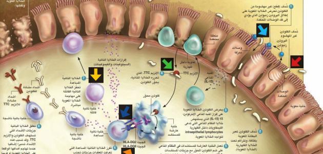 اختيار نمط الاستجابة المناعية